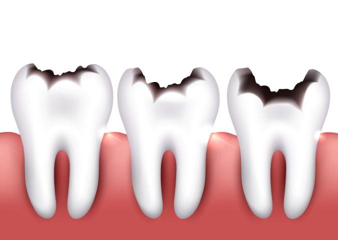¿Son enemigos nuestros dientes y el azúcar?