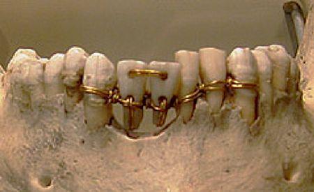 Sabías que desde el siglo  VIII AC. ya se corregía la colocación de los dientes…