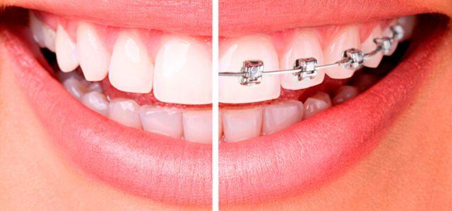 Si estas pensado en iniciar un tratamiento de ortodoncia para tus hijos, te recomendamos leer esto…