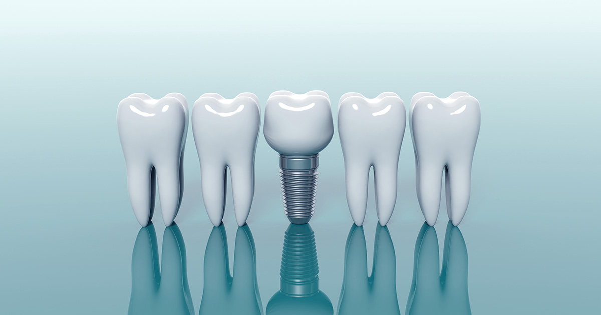 ¿El implante dental duele?