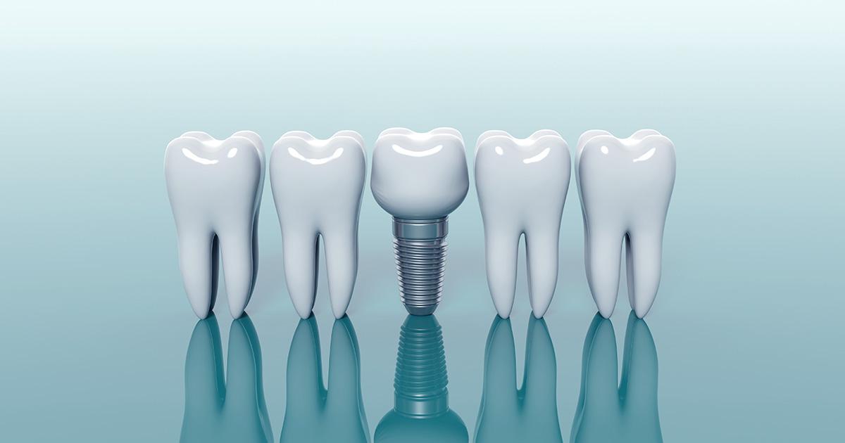 ¿El implante dental duele?